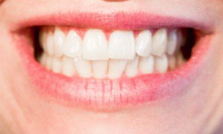 Une mauvaise hygiène des dents est propice aux maladies cardiaques