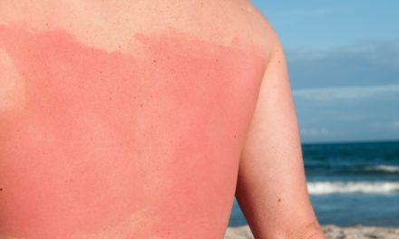 7 remèdes naturels contre les coups de soleil