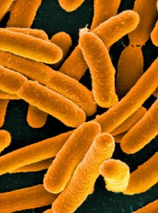 bacteries-intestinales-obesite