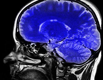 Et si le régime méditerranéenempêchait l'atrophiedu cerveau liée à l'âge?