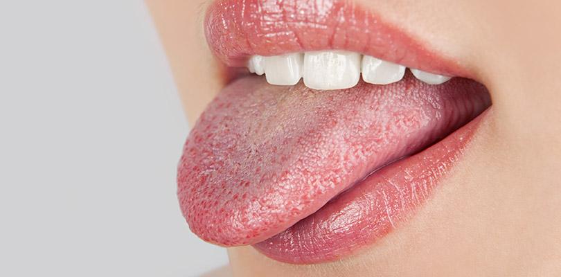 Pourquoi votre langue change de couleur
