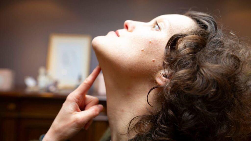 Réduire le double menton et lisser l'ovale du visage